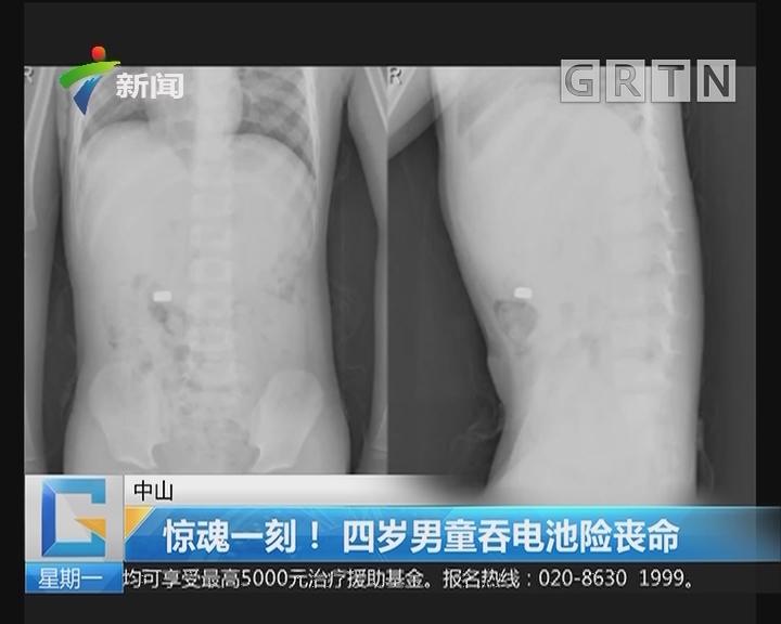 中山:惊魂一刻!四岁男童吞电池险丧命