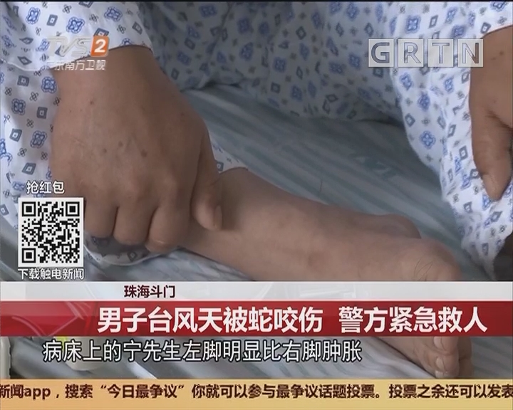 珠海斗门:男子台风天被蛇咬伤 警方紧急救人