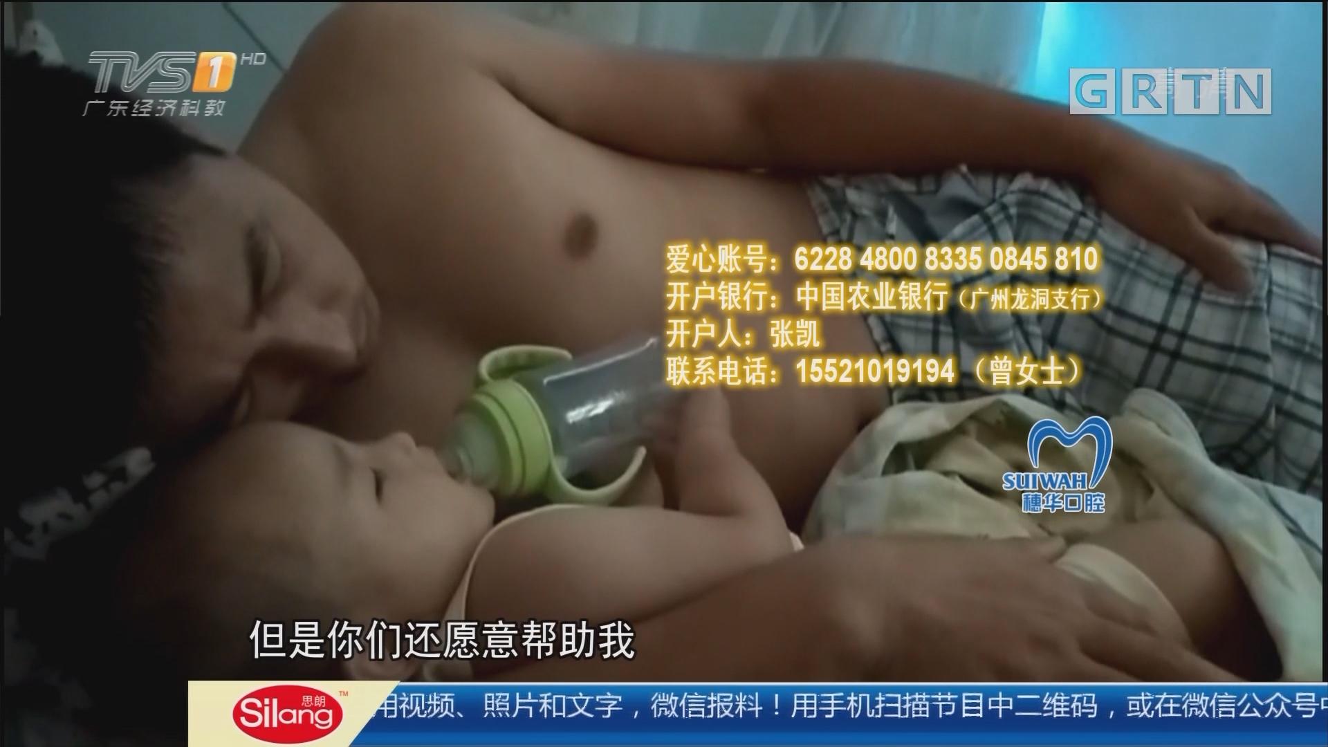 广州天河:厨房传出漏水声 凑近检查煤气爆燃