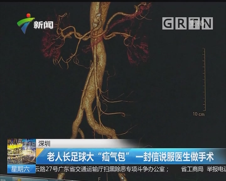 """深圳:老人长足球大""""疝气包"""" 一封信说服医生做手术"""