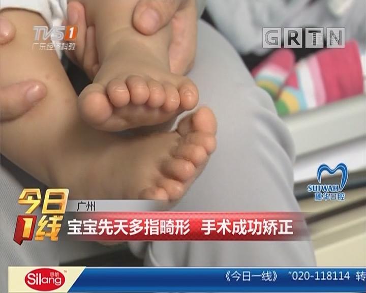 广州:宝宝先天多指畸形 手术成功矫正