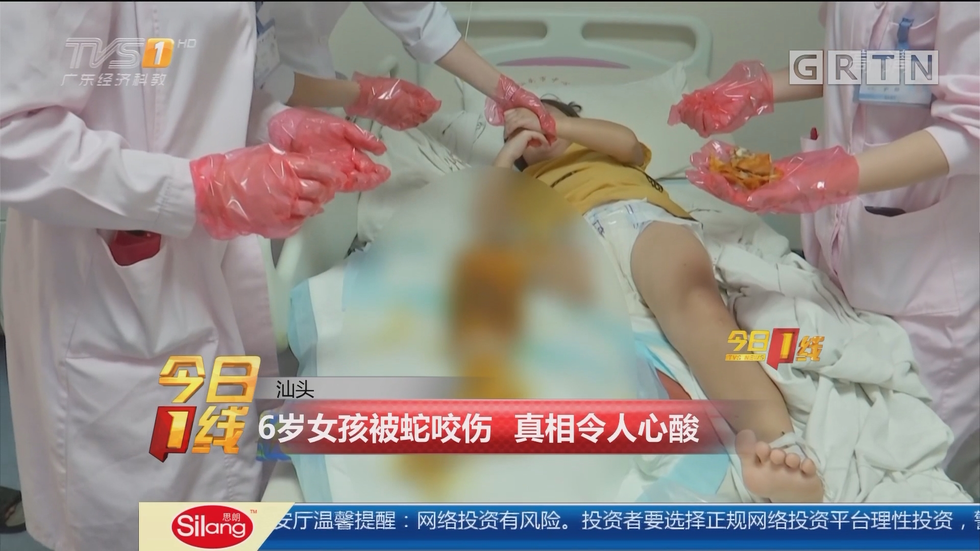 汕头:6岁女孩被蛇咬伤 真相令人心酸