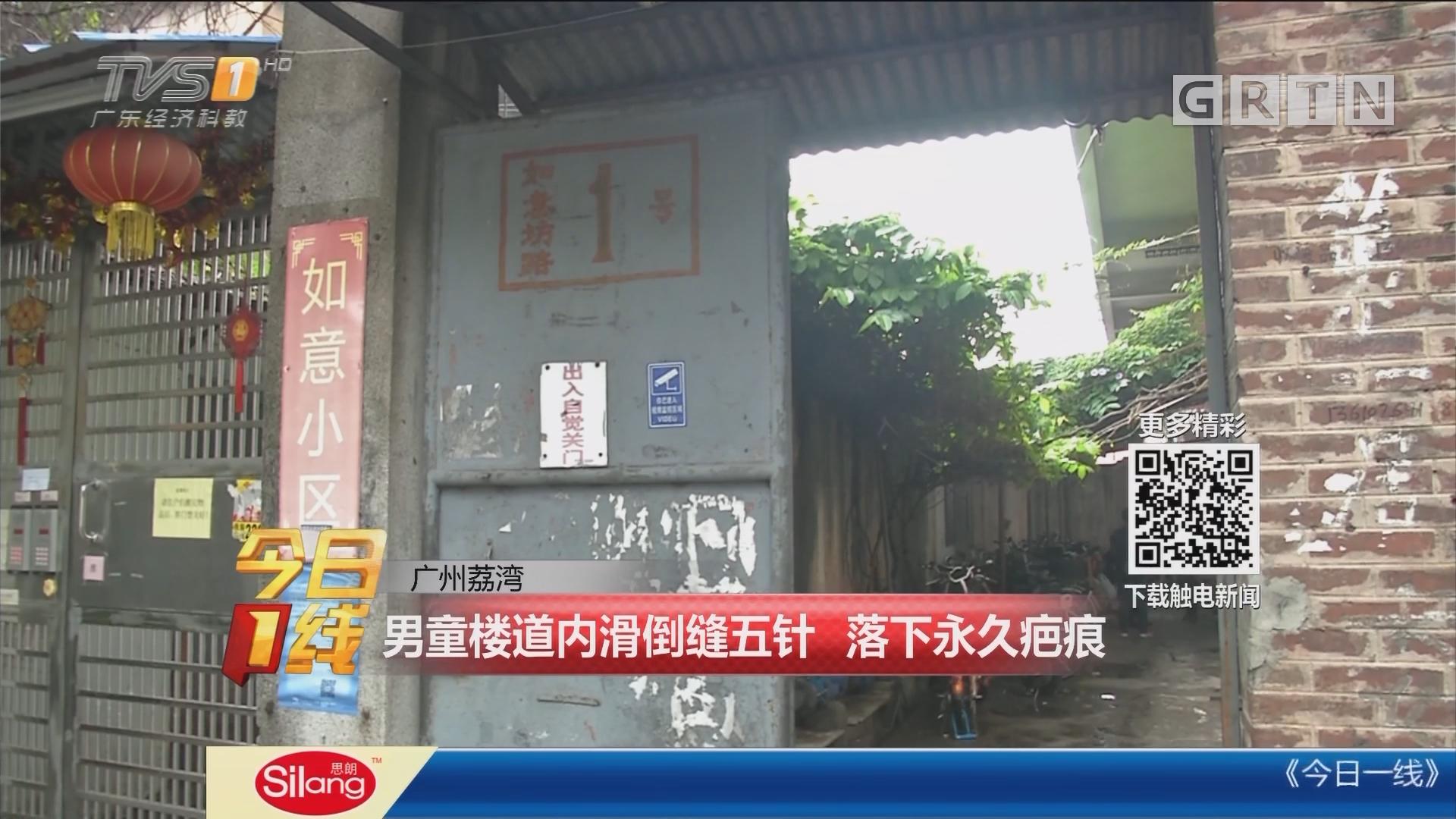 广州荔湾:男童楼道内滑倒缝五针 落下永久疤痕