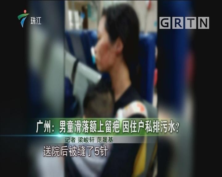 广州:男童滑落额上留疤 因住户私排污水?