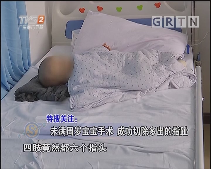 未满周岁宝宝手术 成功切除多出的指趾