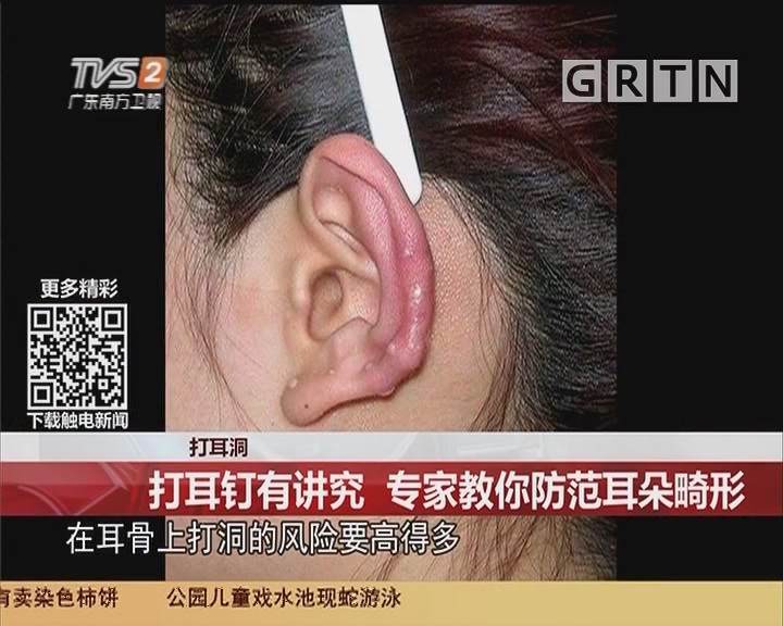 打耳洞:打耳钉有讲究 专家教你防范耳朵畸形