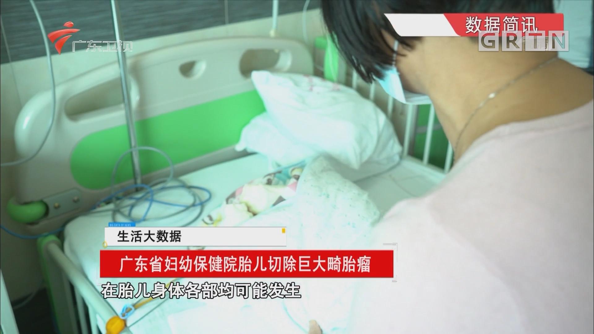 广东省妇幼保健院胎儿切除巨大畸胎瘤