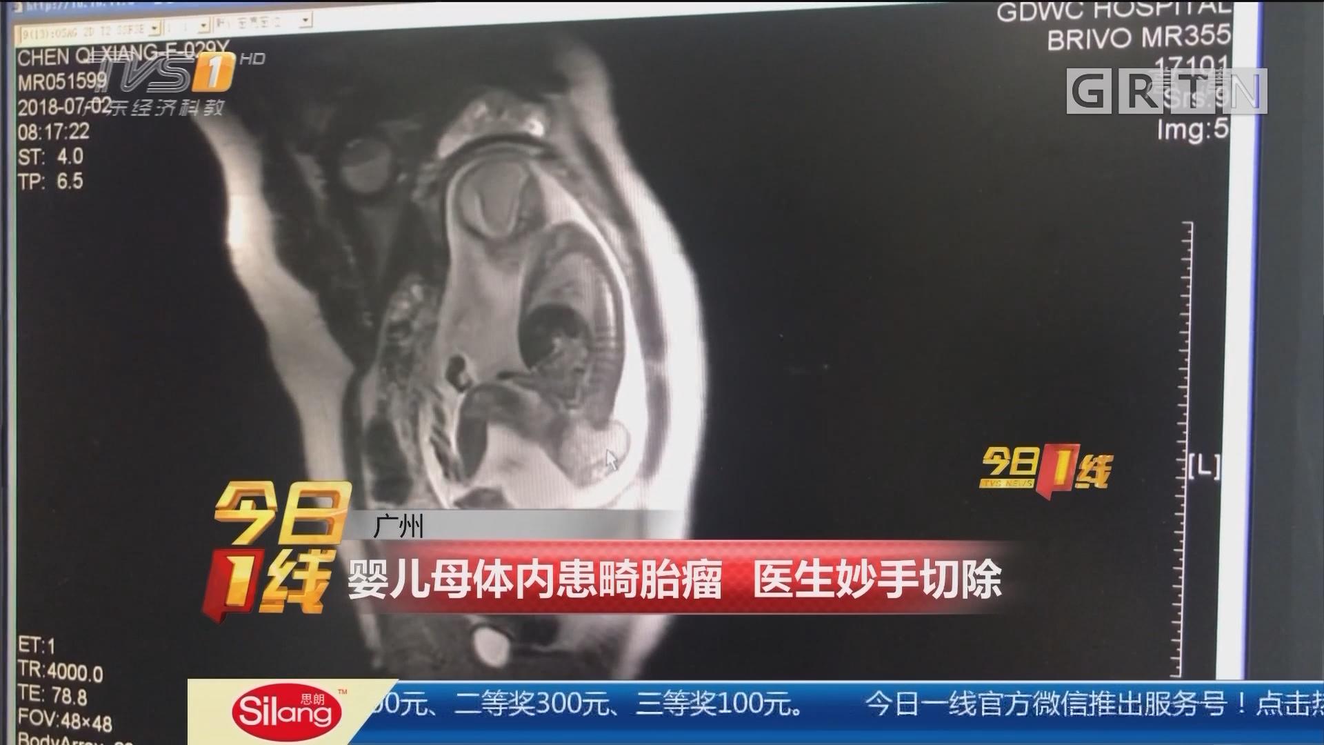 广州:婴儿母体内患畸胎瘤 医生妙手切除