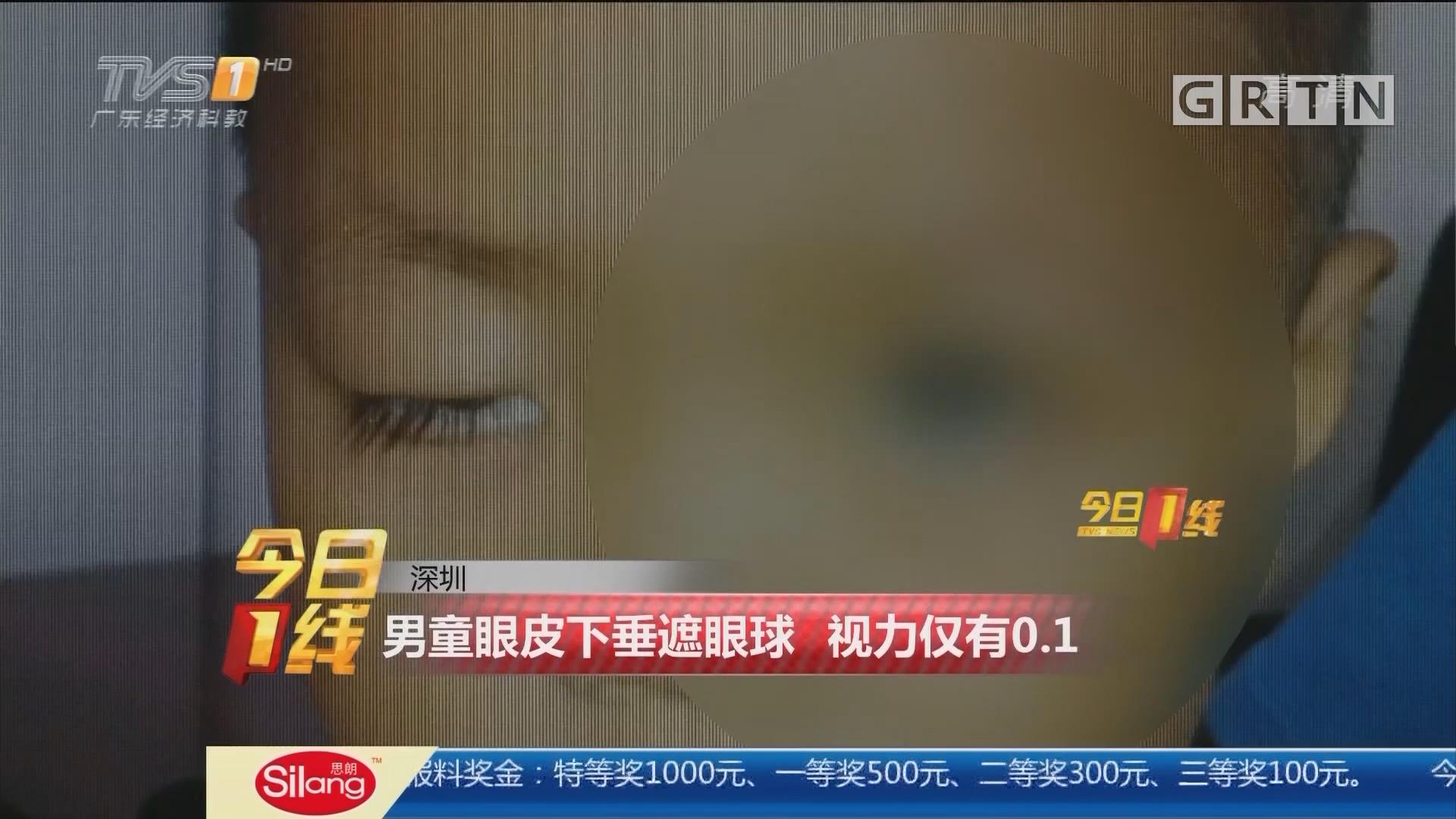 深圳:男童眼皮下垂遮眼球 视力仅有0.1
