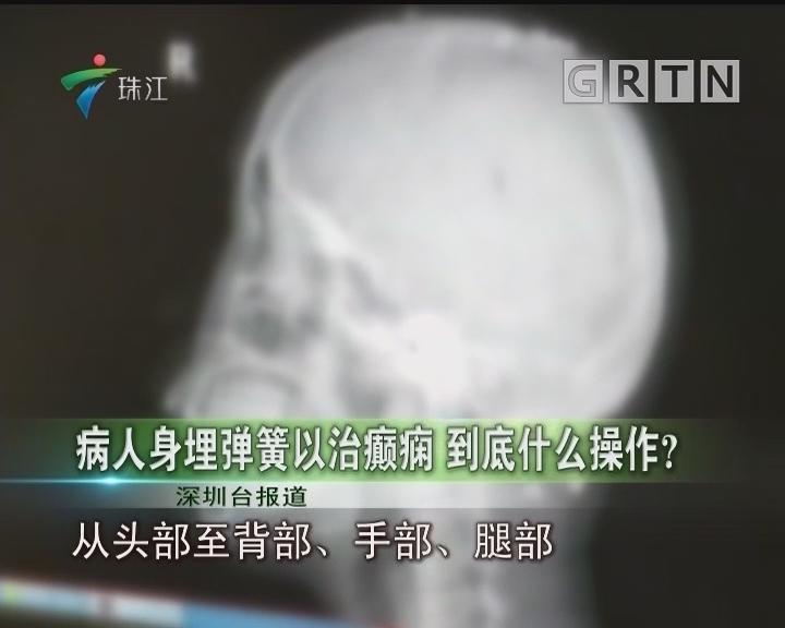 病人身埋弹簧以治癫痫 到底什么操作?