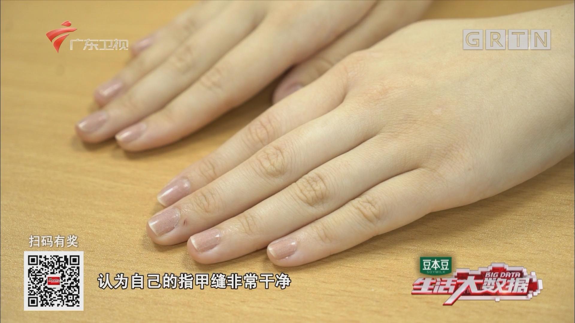 指甲缝藏有污垢