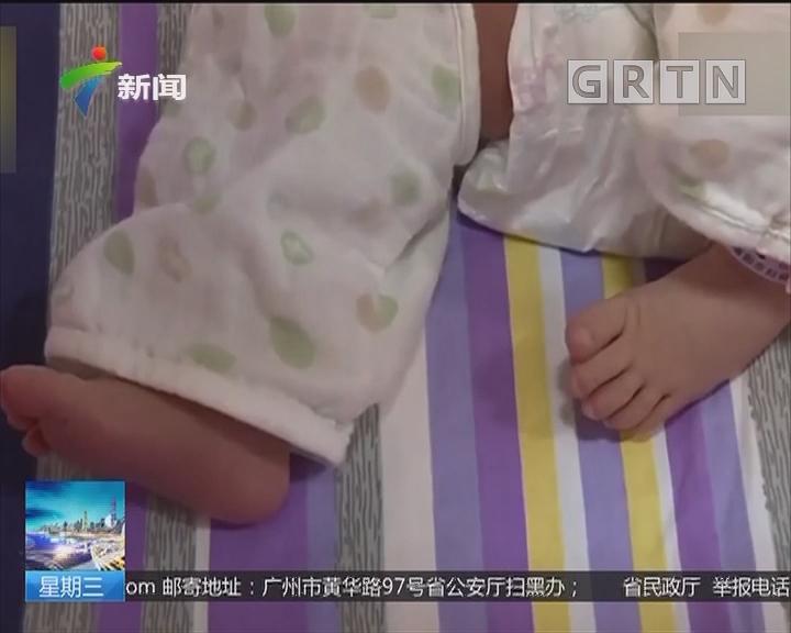 湖北襄阳:宝宝肚子上被扎40多个针眼 直接住进ICU