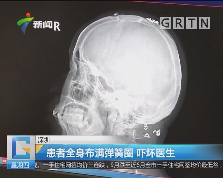 深圳:患者全身布满弹簧圈 吓坏医生