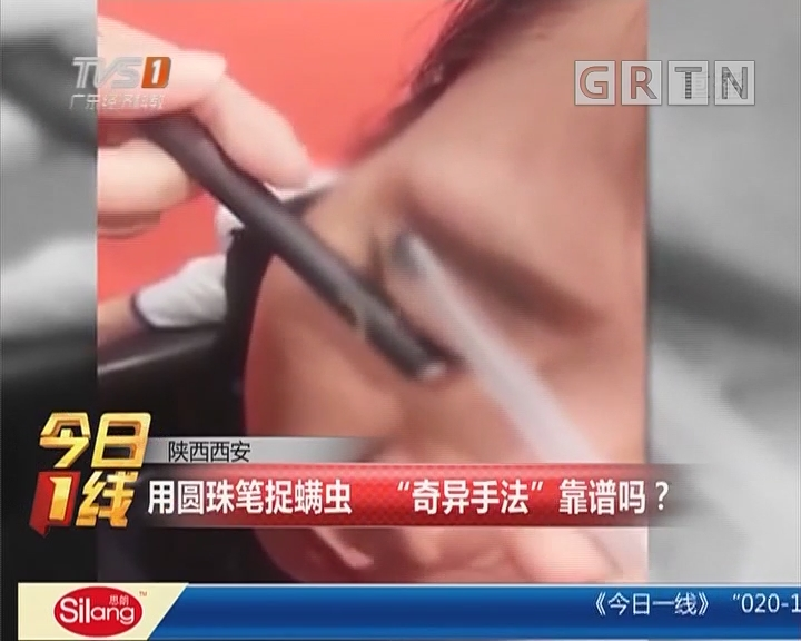 """陕西西安:用圆珠笔捉螨虫 """"奇异手法""""靠谱吗?"""