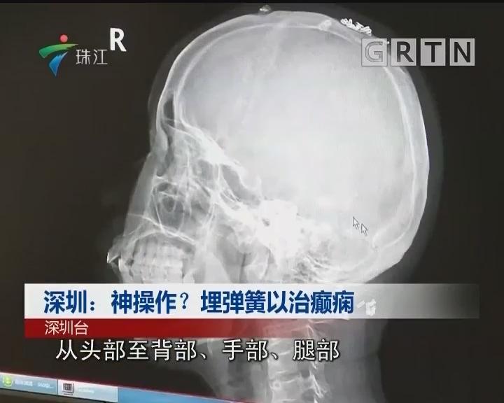 深圳:神操作? 埋弹簧以治癫痫