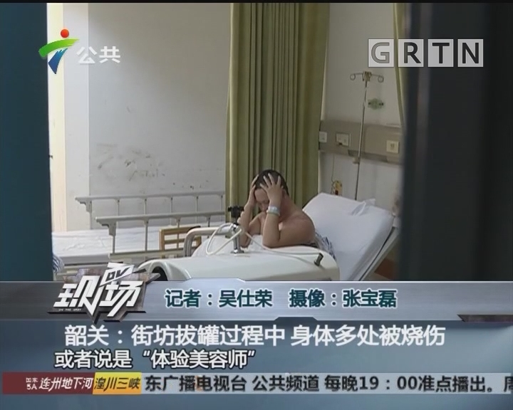 韶关:街坊拔罐过程中 身体多处被烧伤