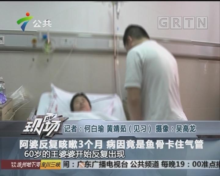 阿婆反复咳嗽3个月 病因竟是鱼骨卡住气管