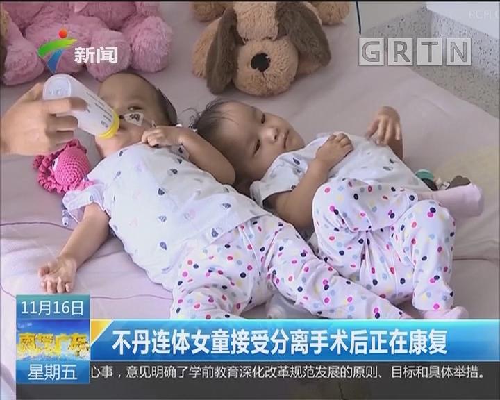 不丹连体女童接受分离手术后正在康复