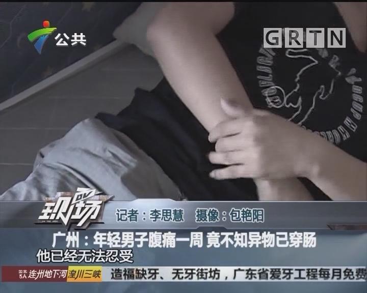 广州:年轻男子腹痛一周 竟不知异物已穿肠