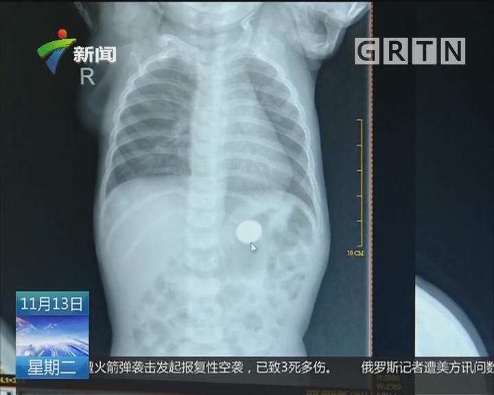 深圳:一岁幼儿摔伤入院 意外发现胃里有钱