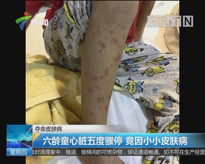 夺命皮肤病:六龄童心脏五度骤停 竟因小小皮肤病