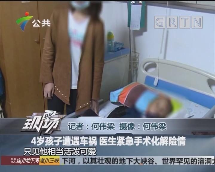 4岁孩子遭遇车祸 医生紧急手术化解险情