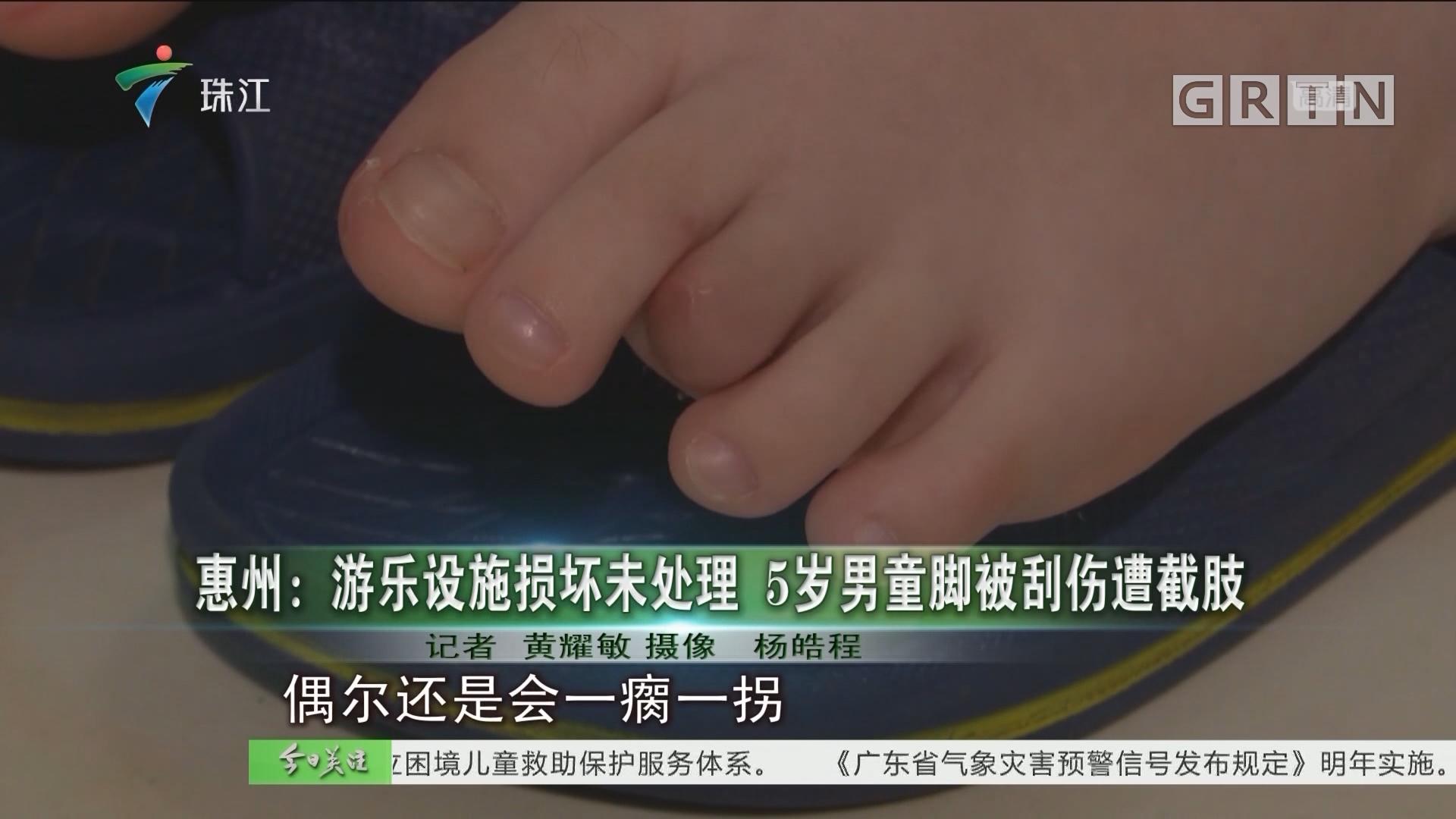 惠州:游乐设施损坏未处理 5岁男童脚被刮伤遭截肢