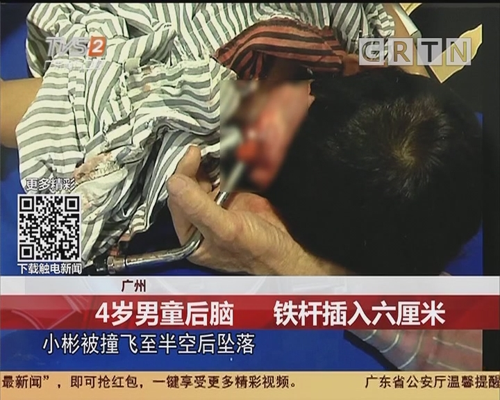 广州:4岁男童后脑 铁杆插入六厘米
