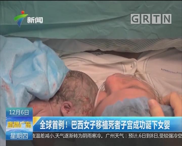 全球首例!巴西女子移植死者子宫成功诞下女婴