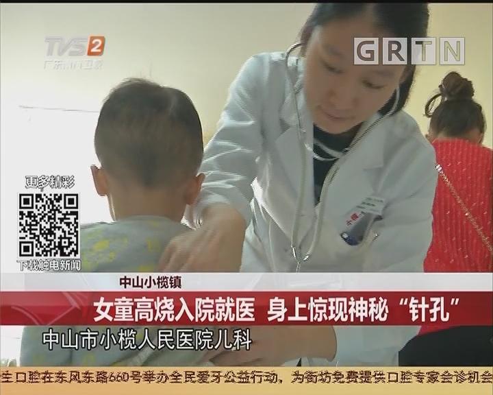 """中山小榄镇:女童高烧入院就医 身上惊现神秘""""针孔"""""""