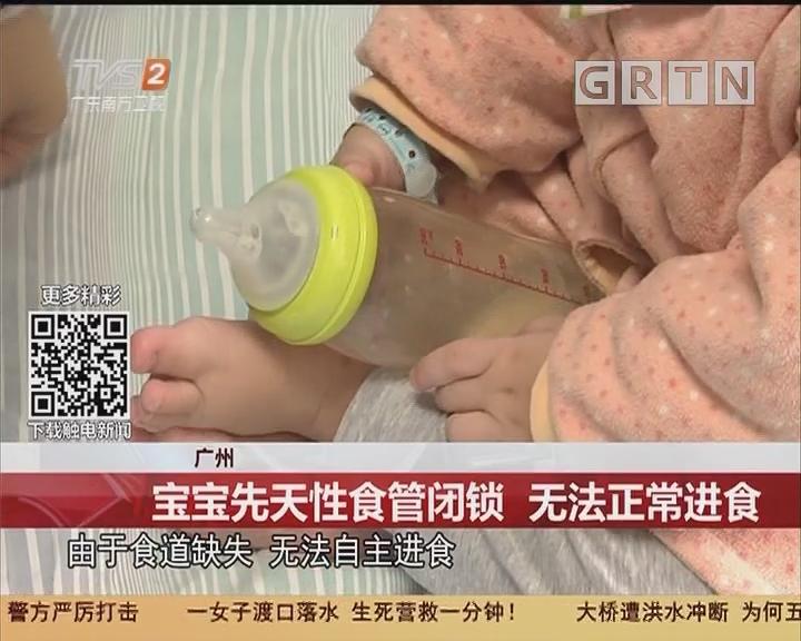 广州:宝宝先天性食管闭锁 无法正常进食