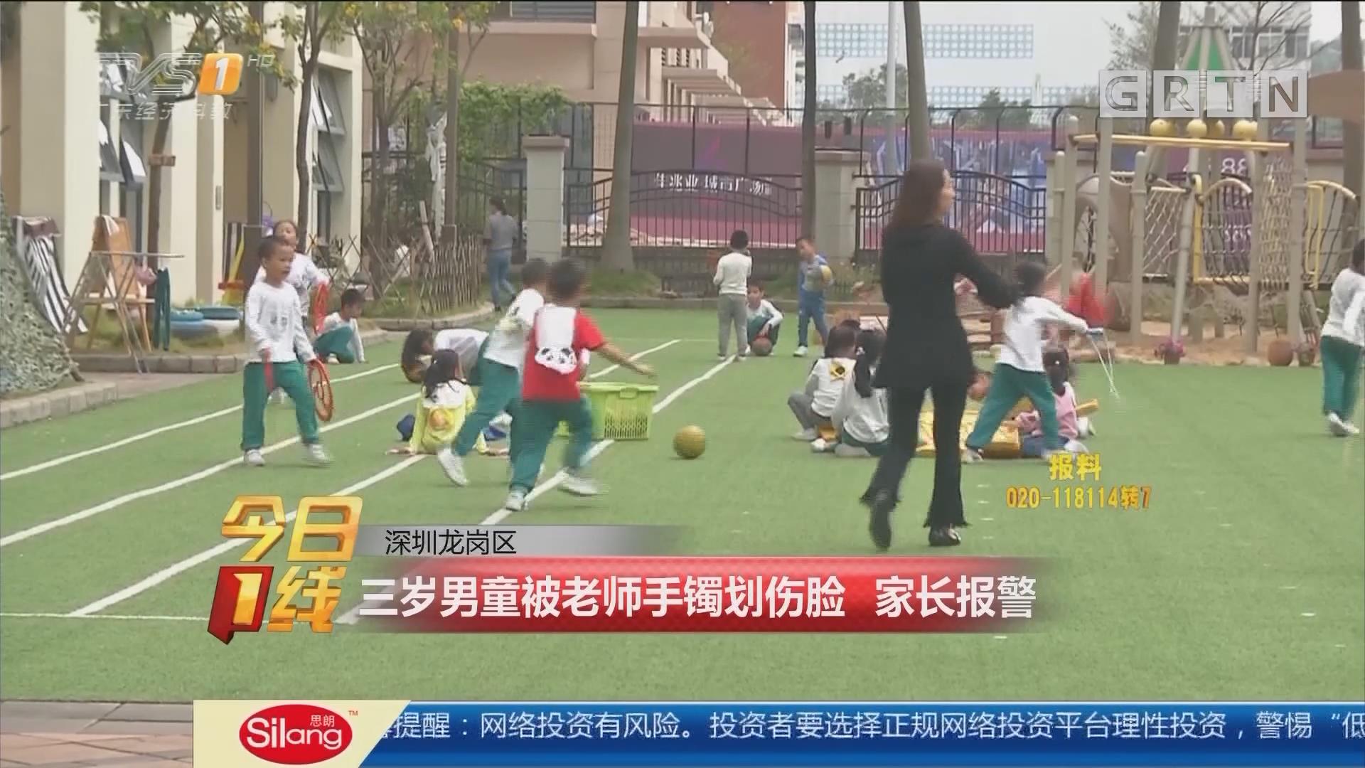 深圳龙岗区:三岁男童被老师手镯划伤脸 家长报警