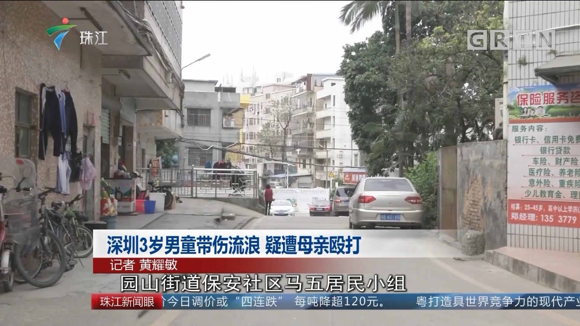 深圳3岁男童带伤流浪 疑遭母亲殴打