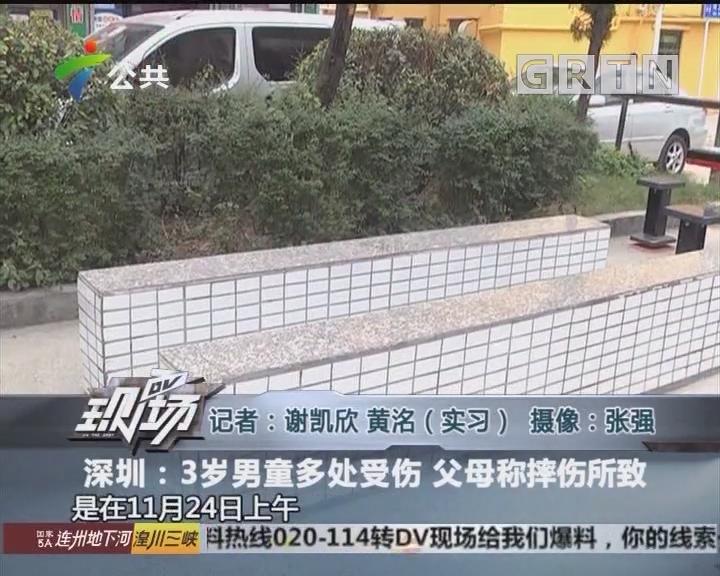 深圳:3岁男童多处受伤 父母称摔伤所致