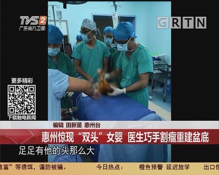 """惠州:惠州惊现""""双头""""女婴 医生巧手割瘤重建盆底"""