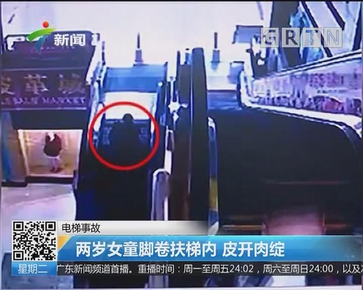 电梯事故:两岁女童脚卷进扶梯内 皮开肉绽