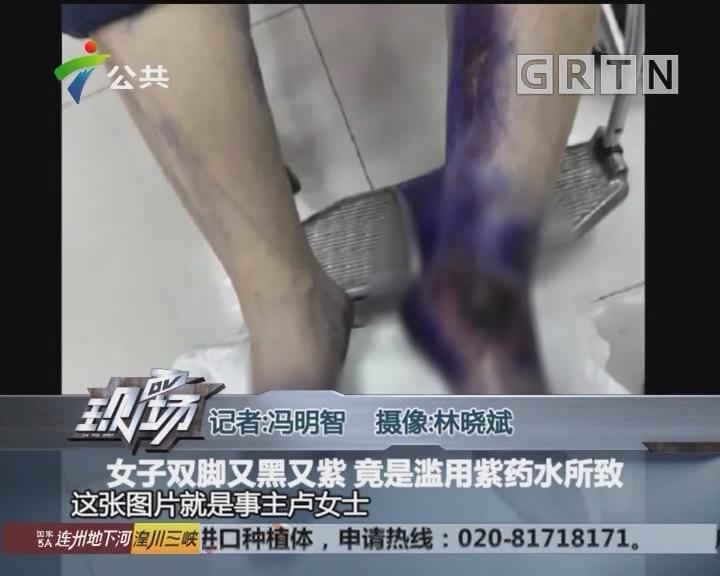 女子双脚又黑又紫 竟是滥用紫药水所致