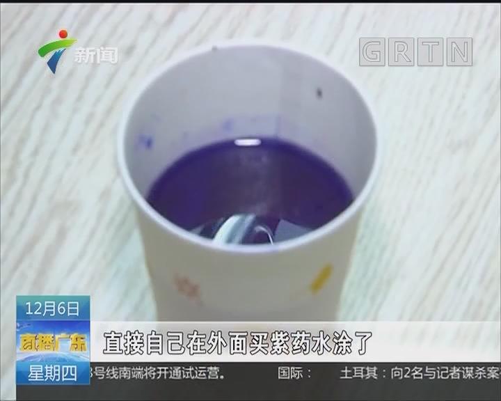 中山:烫伤后涂紫药水 女子皮肤大面积感染