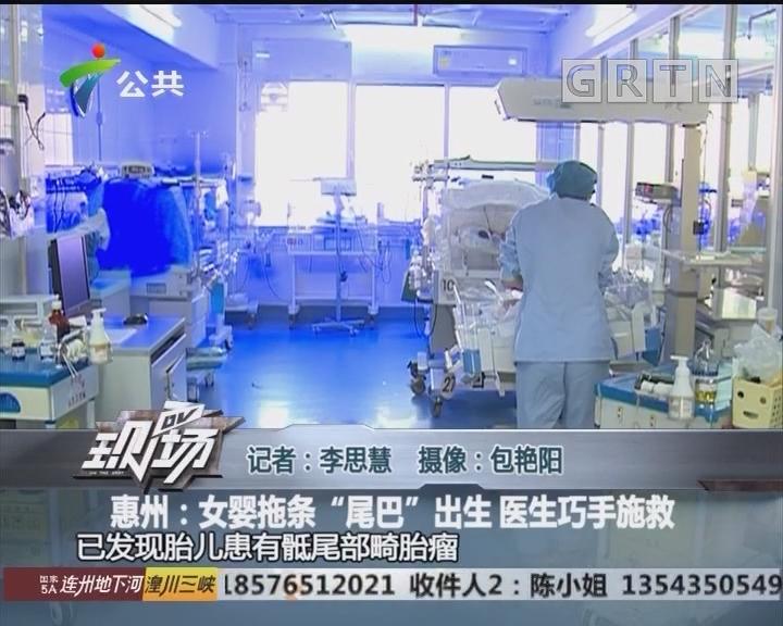 """惠州:女婴拖条""""尾巴""""出生 医生巧手施救"""