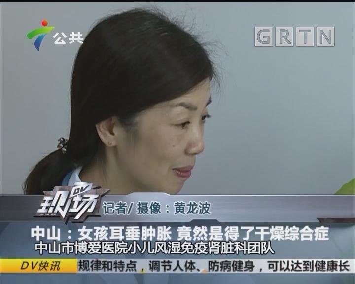 中山:女孩耳垂肿胀 竟然是得了干燥综合症
