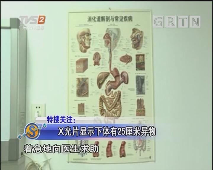 X光片显示下体有25厘米异物