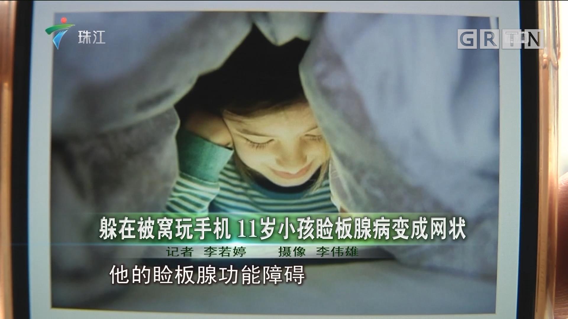 躲在被窝玩手机 11岁小孩脸板腺病变成网状
