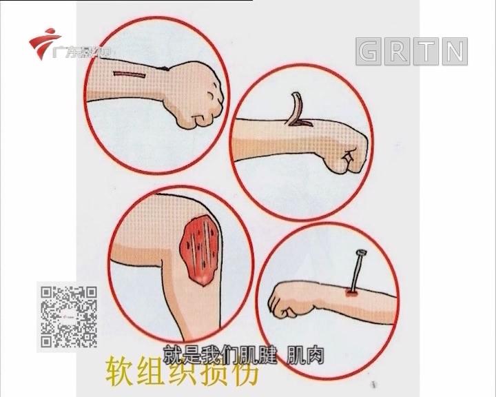 《健康生活》运动损伤分软组织损伤和骨折