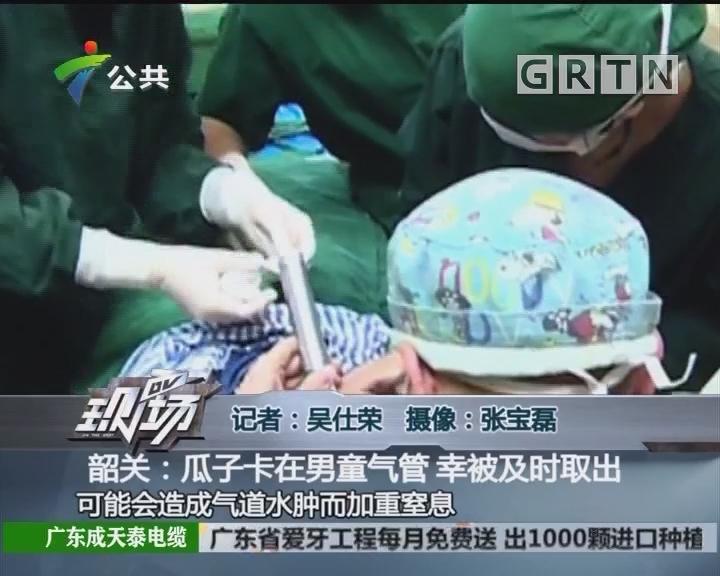 韶关:瓜子卡在男童气管 幸被及时取出