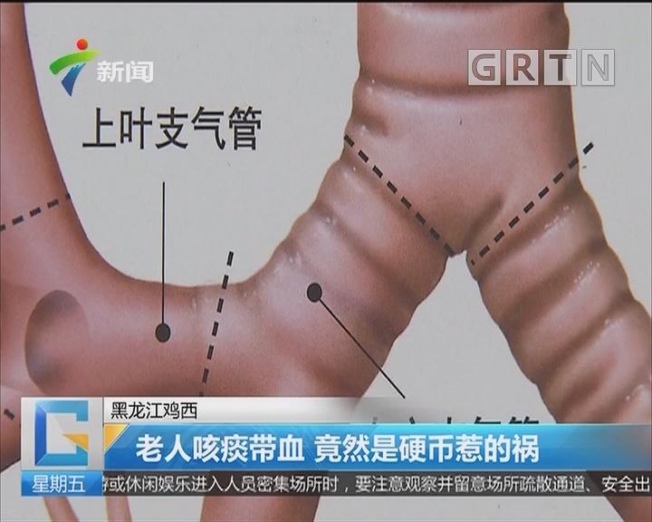 黑龙江鸡西:老人咳痰带血 竟然是硬币惹的祸