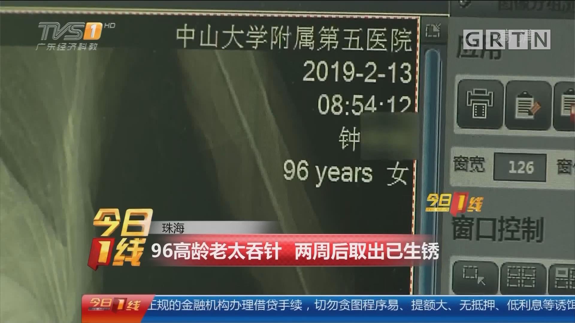 珠海:96高龄老太吞针 两周后取出已生锈