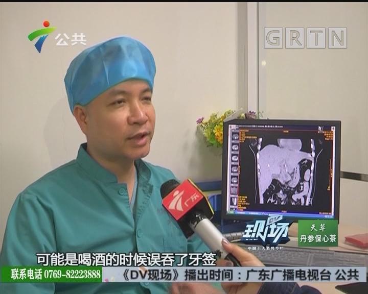 佛山:女子误吞牙签 胃肝被戳破险致命