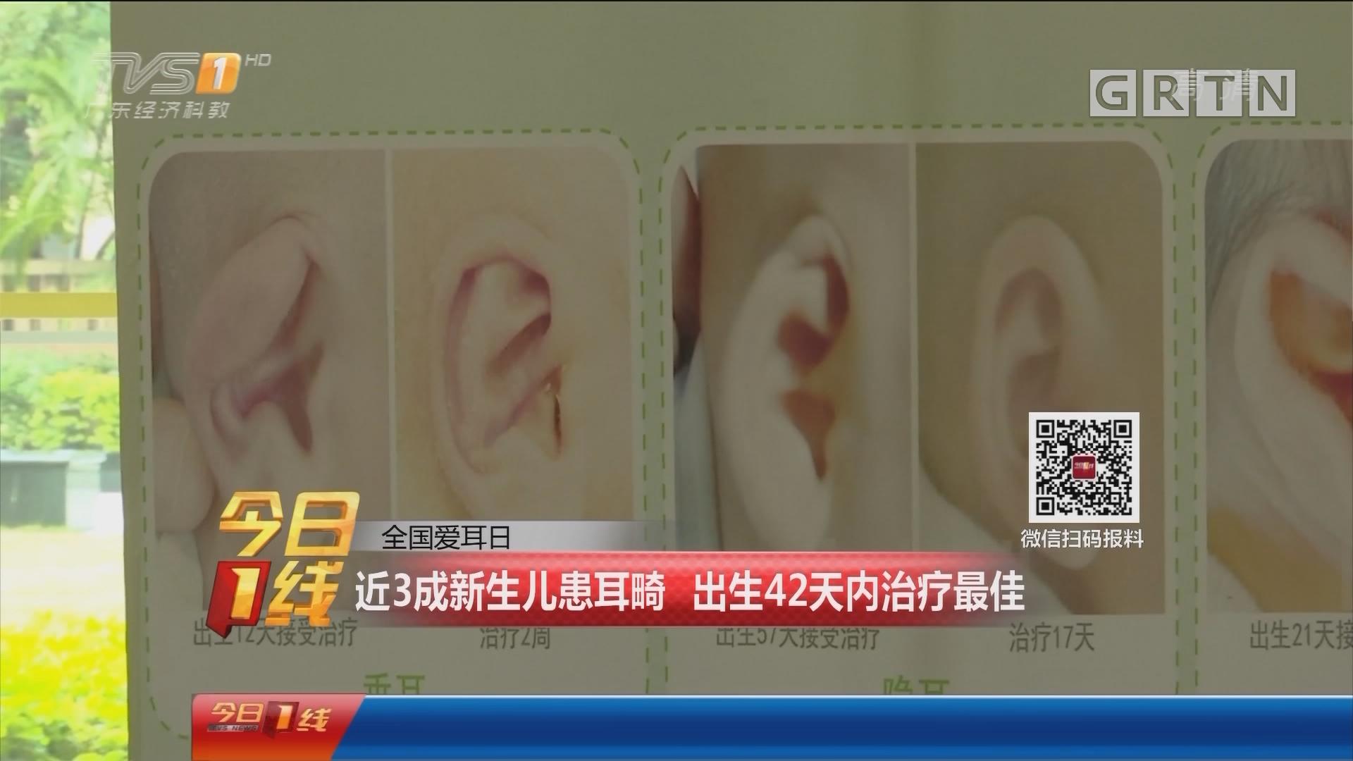 全国爱耳日:近3成新生儿患耳畸 出生42天内治疗最佳