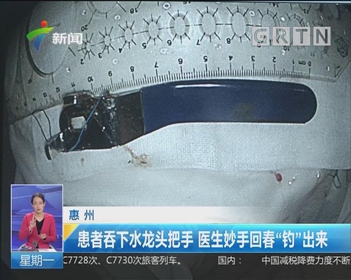 """惠州:患者吞下水龙头把手 医生妙手回春""""钓""""出来"""