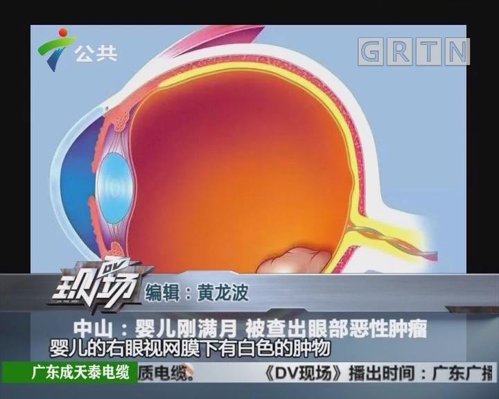 中山:婴儿刚满月 被查出眼部恶性肿瘤